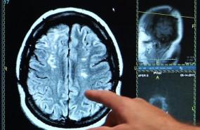 ep ictus derrame cerebral cerebro 20190627183603